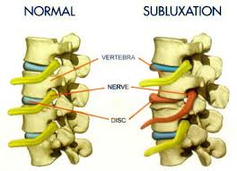 picture of a normal spine compared to a misaligned spine